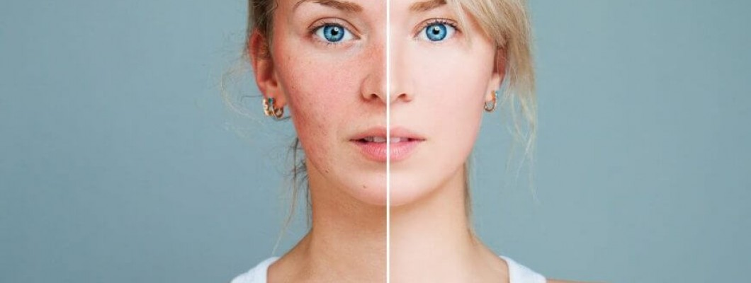 Rosacea and How to Overcome It with Clay